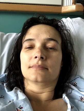 wednesday, post -surgery